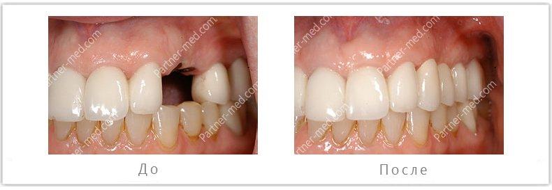 установка импланта в области отсутствующего жевательного зуба на верхней челюсти