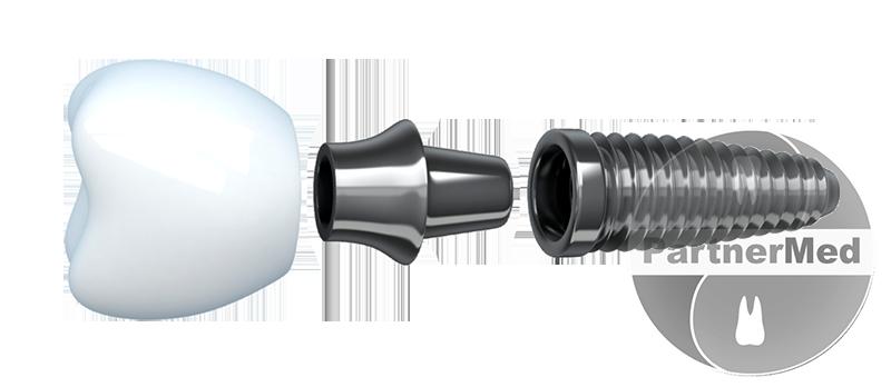 Изображение - Льготы на протезирование зубов для пенсионеров implant-pensioneram