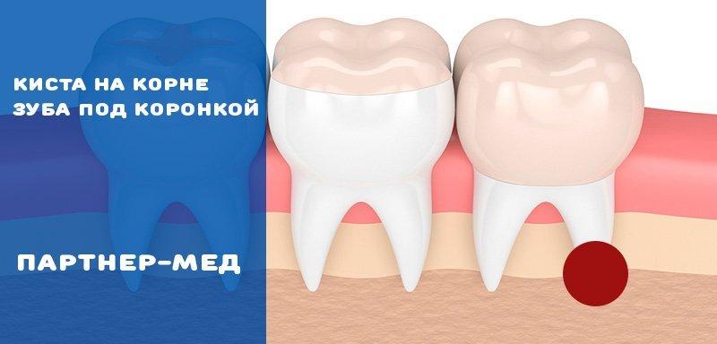 Киста зуба под коронкой лечение