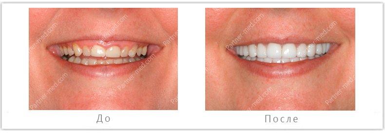 Красивые зубки стоматология