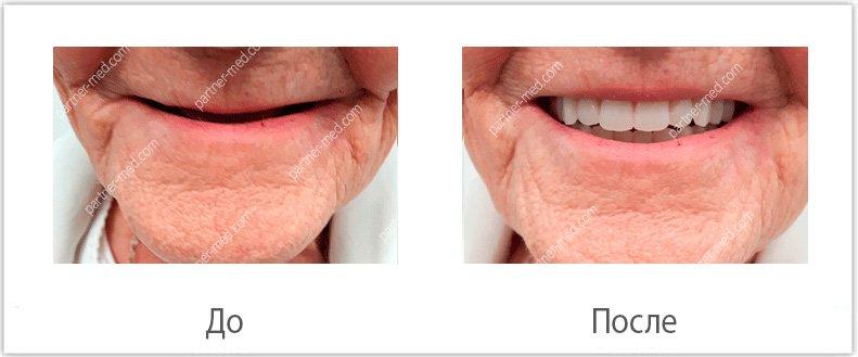 Изображение - Льготы на протезирование зубов для пенсионеров protezirjvanie-dlya-pensionerov