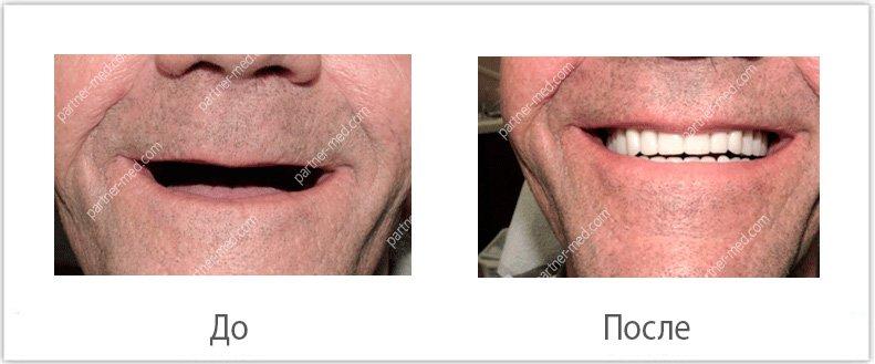 Изображение - Льготы на протезирование зубов для пенсионеров protezirjvanie-dlya-pensionerov1
