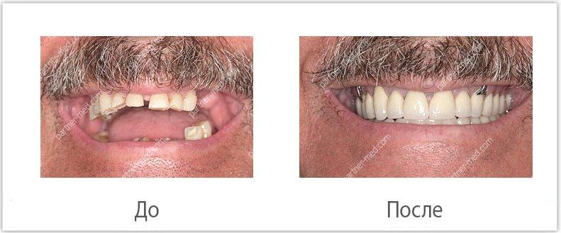 Изображение - Льготы на протезирование зубов для пенсионеров protezirjvanie-dlya-pensionerov2