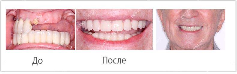 Изображение - Льготы на протезирование зубов для пенсионеров protezirjvanie-dlya-pensionerov3