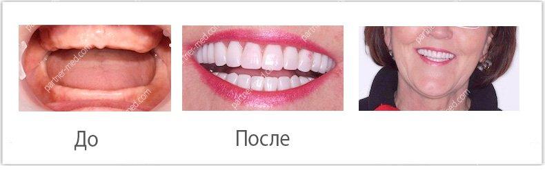 Изображение - Льготы на протезирование зубов для пенсионеров protezirjvanie-dlya-pensionerov4