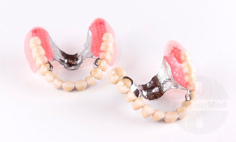 Изображение - Льготы на протезирование зубов для пенсионеров protezy-dlya-pensionerov-15000