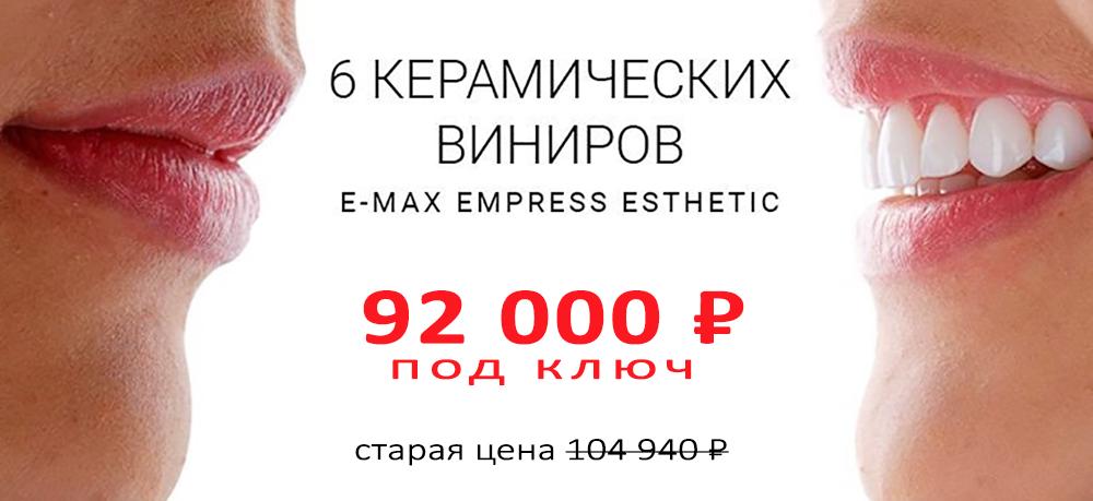 Акция на 6 виниров за 92000