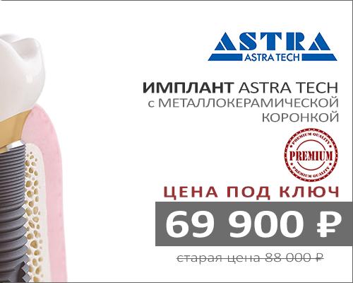 Акция имплант Астра Тек с металлокерамической коронкой