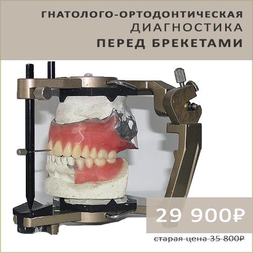 Акция гнатолого-ортодонтическая диагностика перед брекетами