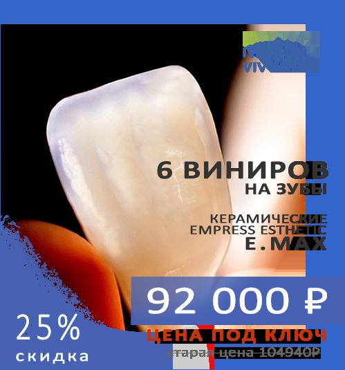 Акция 6 виниров на зубы