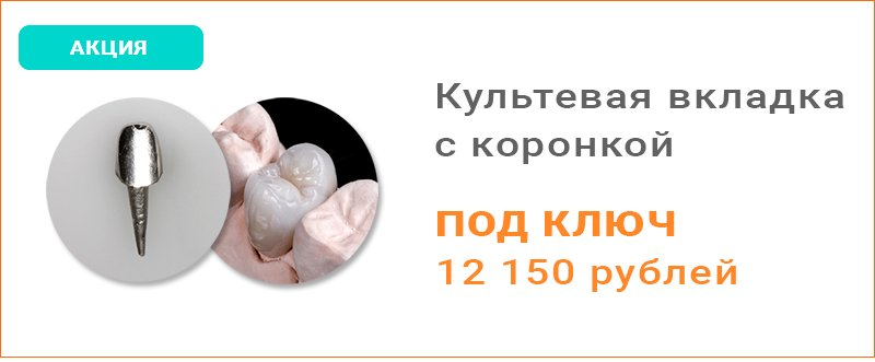 Акция культевая вкладка с коронкой под ключ в Москве